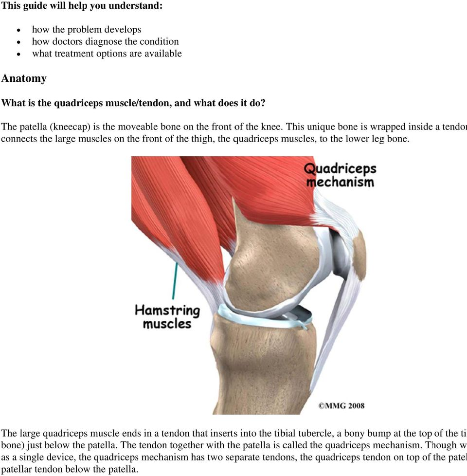 Quadriceps Tendonitis Of The Knee Introduction Welcome To Bodyzone