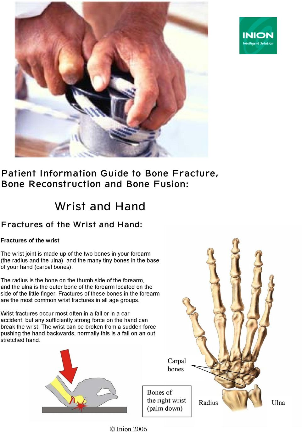 The radius is the bone on the thumb side of the forearm, and the ulna is the outer bone of the forearm located on the side of the little finger.