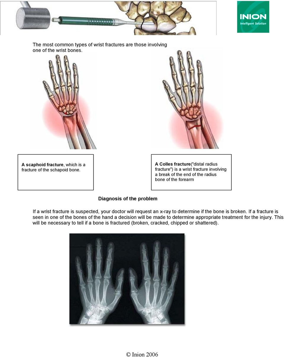 wrist fracture is suspected, your doctor will request an x-ray to determine if the bone is broken.
