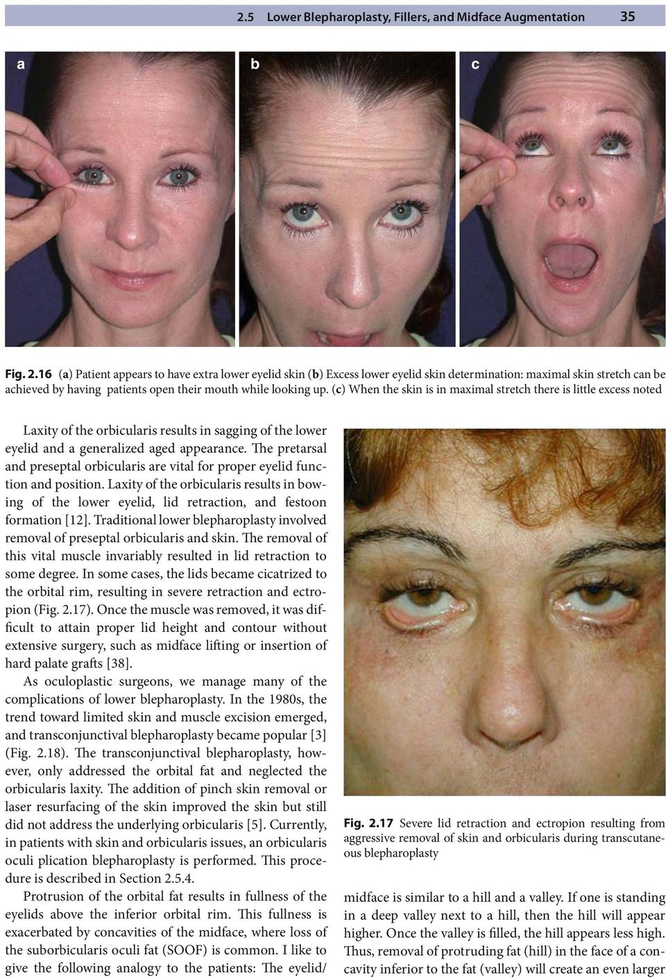 Pearls in Cosmetic Oculofacial Plastic Surgery - PDF