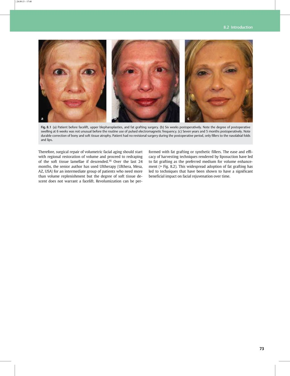 Above told facial soft tissue swelling with
