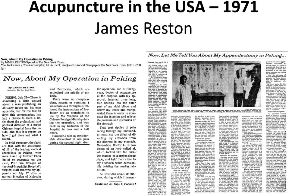 Resultado de imagen de James Reston New York Times acupuntura