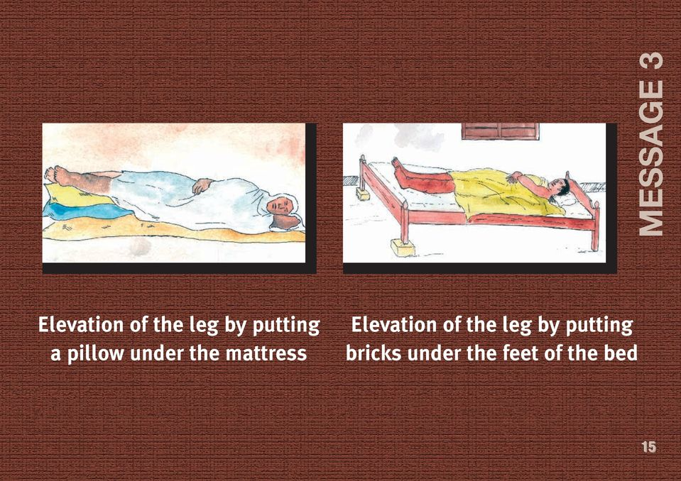 mattress Elevation of the leg by
