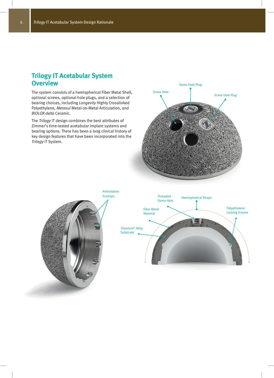 Screw Hole Screw Hole Plug The Trilogy IT design combines the best attributes of Zimmer s time-tested acetabular implant systems and bearing options.