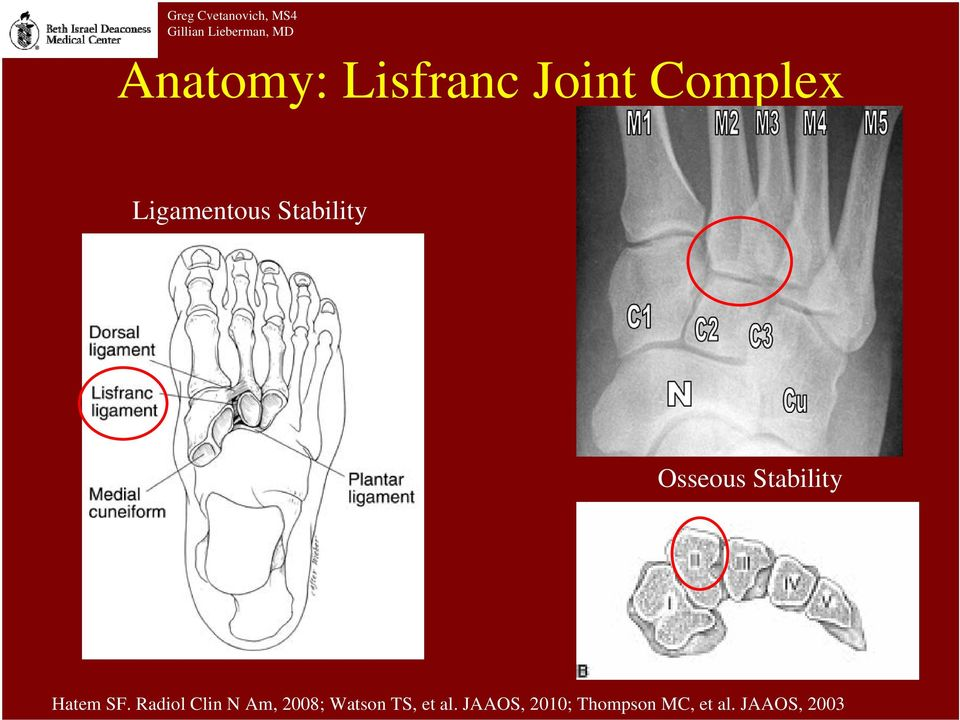 Imaging of Lisfranc Injury - PDF
