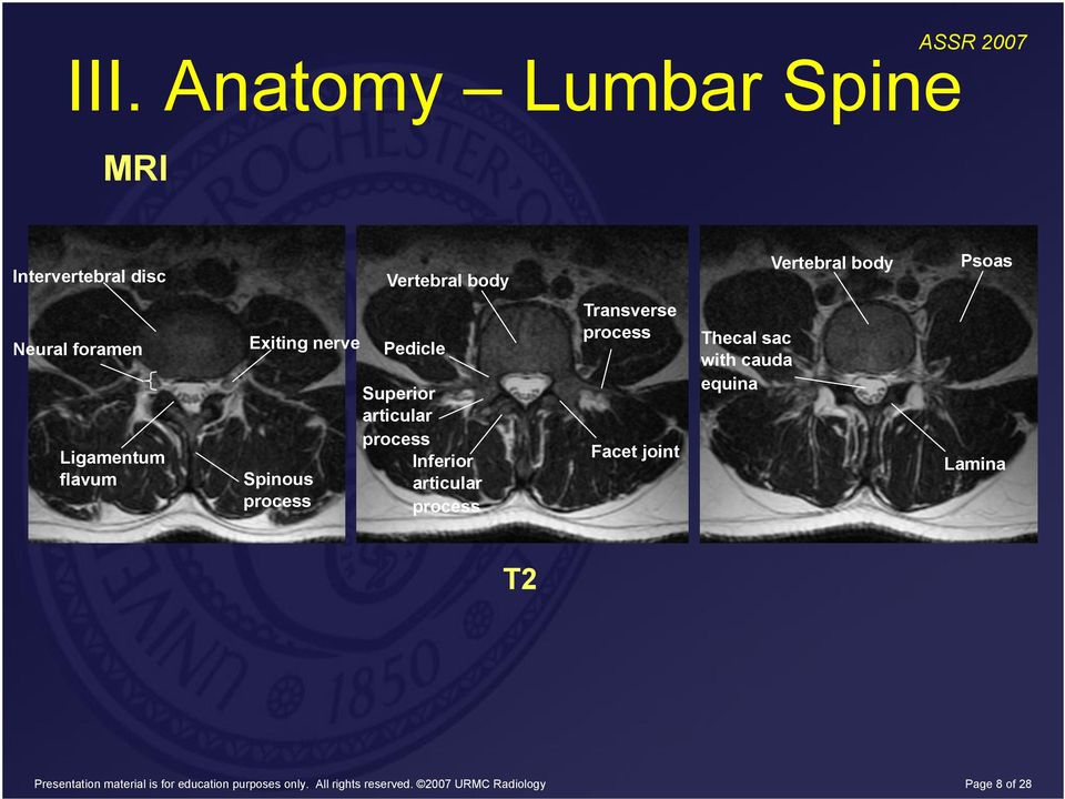 Image-guided Spine Procedures for Relief of Severe Lower Back Pain ...
