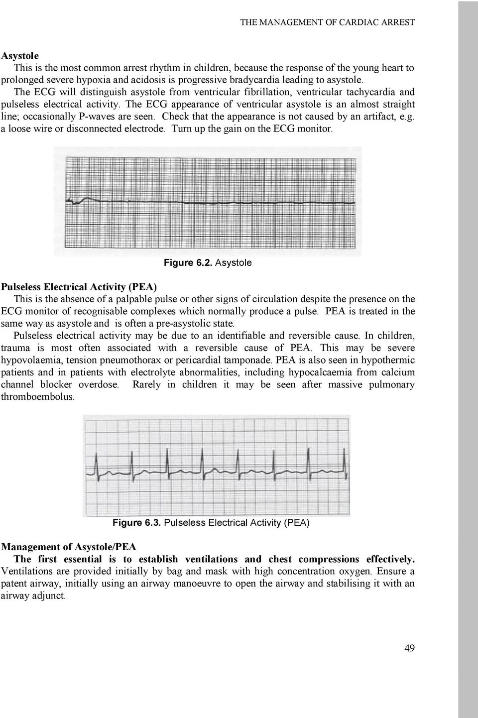 The ECG appearance of ventricular asystole is an almost straight line; occasionally P-waves are seen. Check that the appearance is not caused by an artifact, e.g. a loose wire or disconnected electrode.
