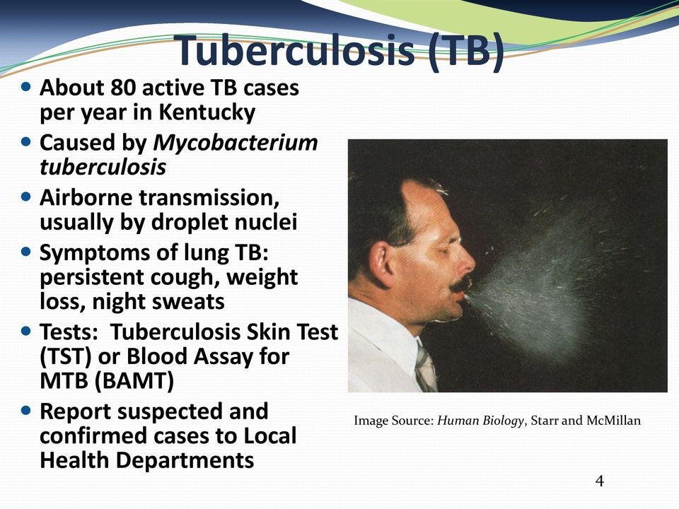 cough, weight loss, night sweats Tests: Tuberculosis Skin Test (TST) or Blood Assay for MTB (BAMT)
