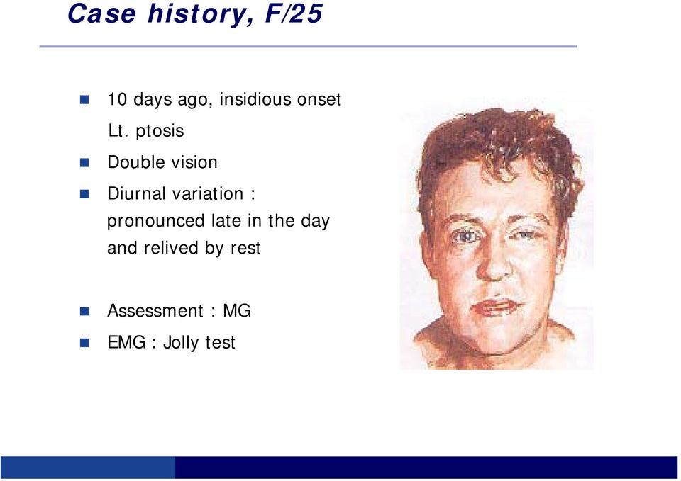 ptosis Double vision Diurnal variation :
