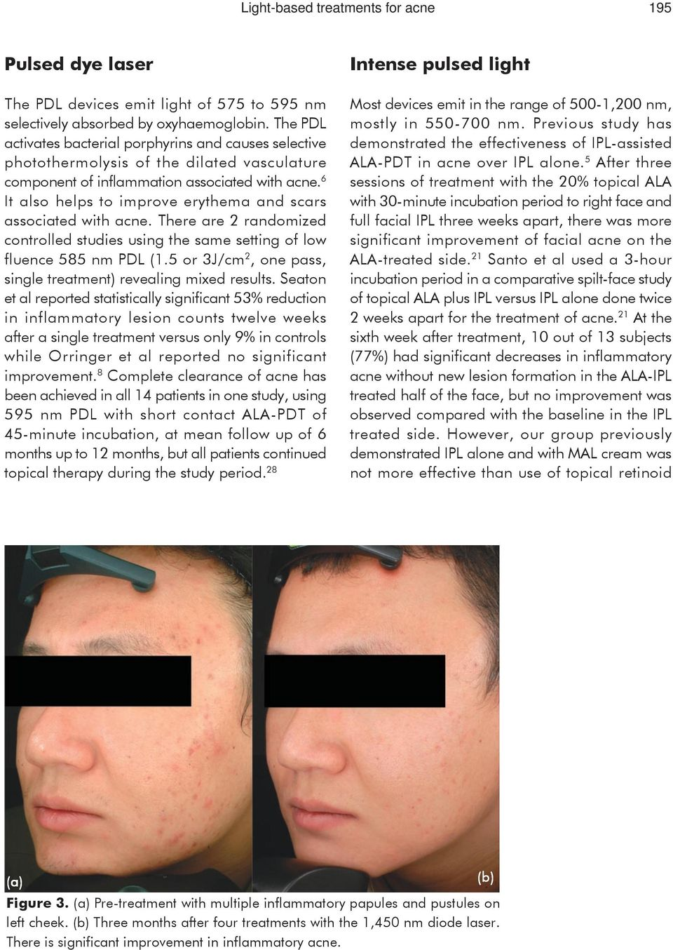 Review Article Light Based Treatments For Acne Introduction Pdf Dana A Treatment Device 6 It Also Helps To Improve Erythema And Scars Associated With There Are 2