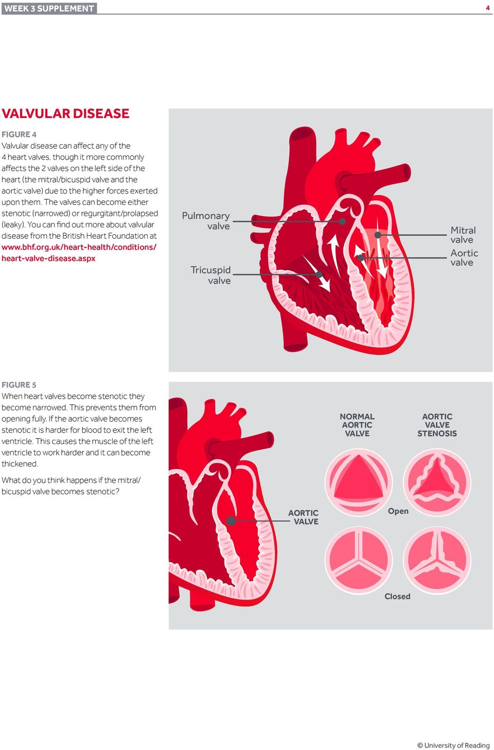 You can find out more about valvular disease from the British Heart Foundation at www.bhf.org.uk/heart-health/conditions/ heart--disease.