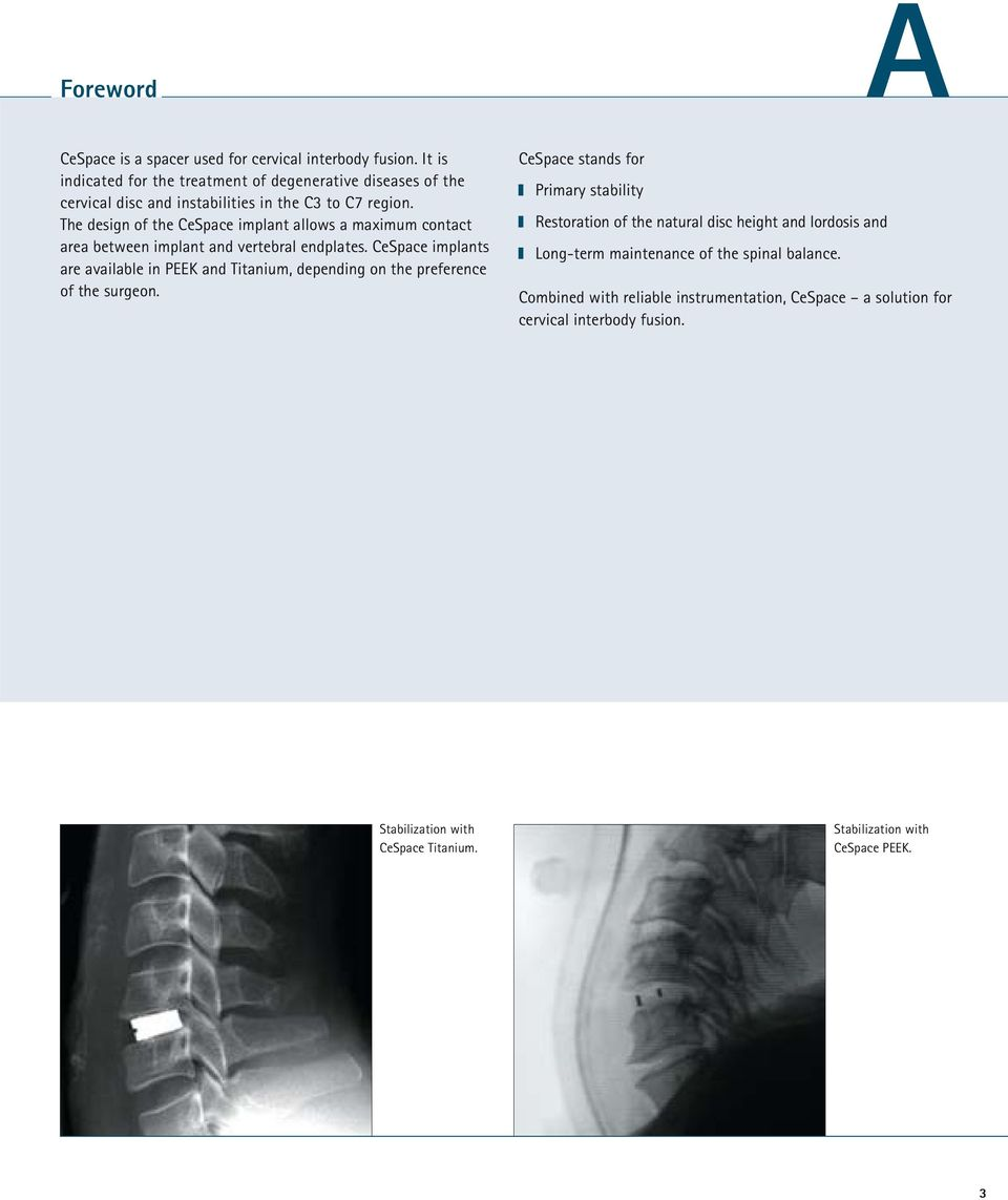 The design of the CeSpace implant allows a maximum contact area between implant and vertebral endplates.