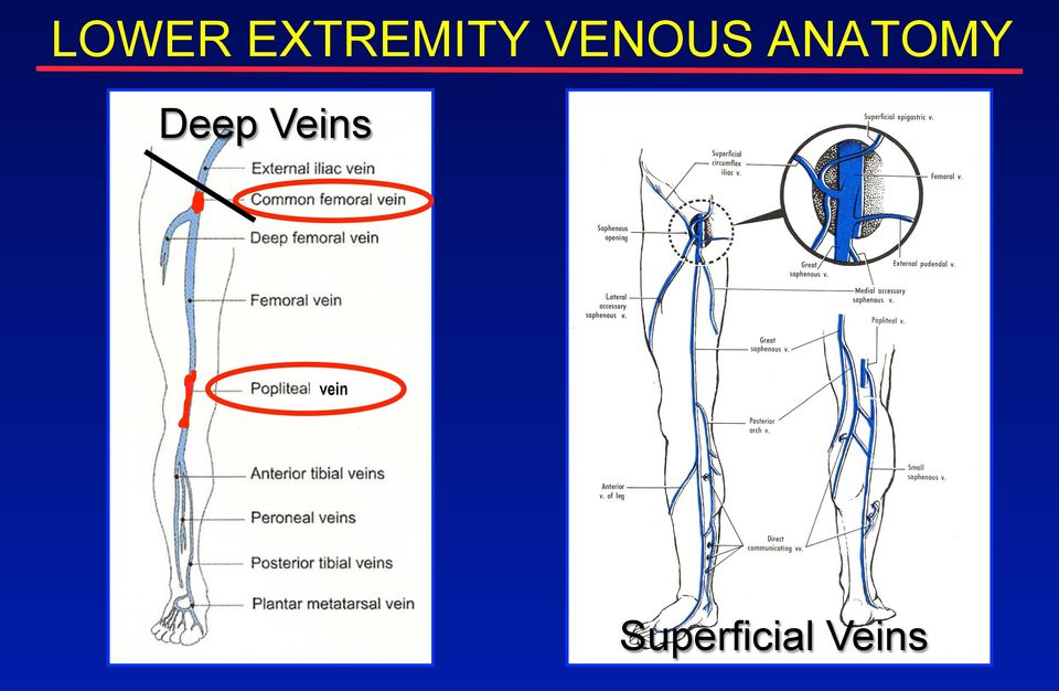 Screening Compression Ultrasound For Lower Extremity Dvt Pdf