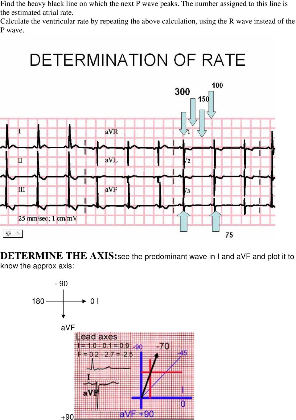 Calculate the ventricular rate by repeating the above calculation, using the R wave