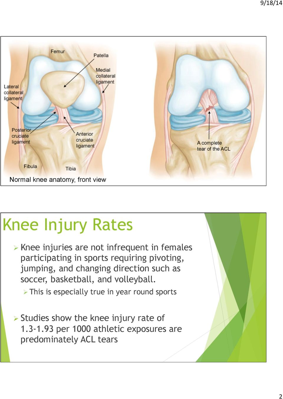 ACL INJURIES IN THE FEMALE ATHLETE - PDF