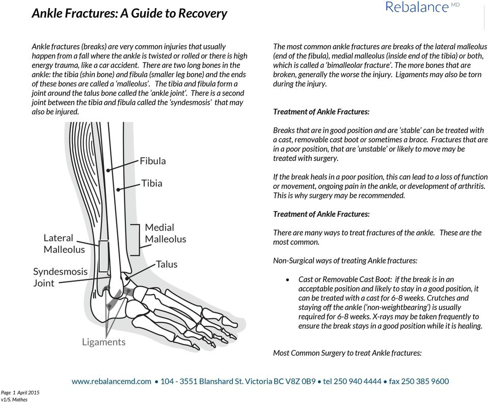 Ankle Fractures: A Guide to Recovery - PDF