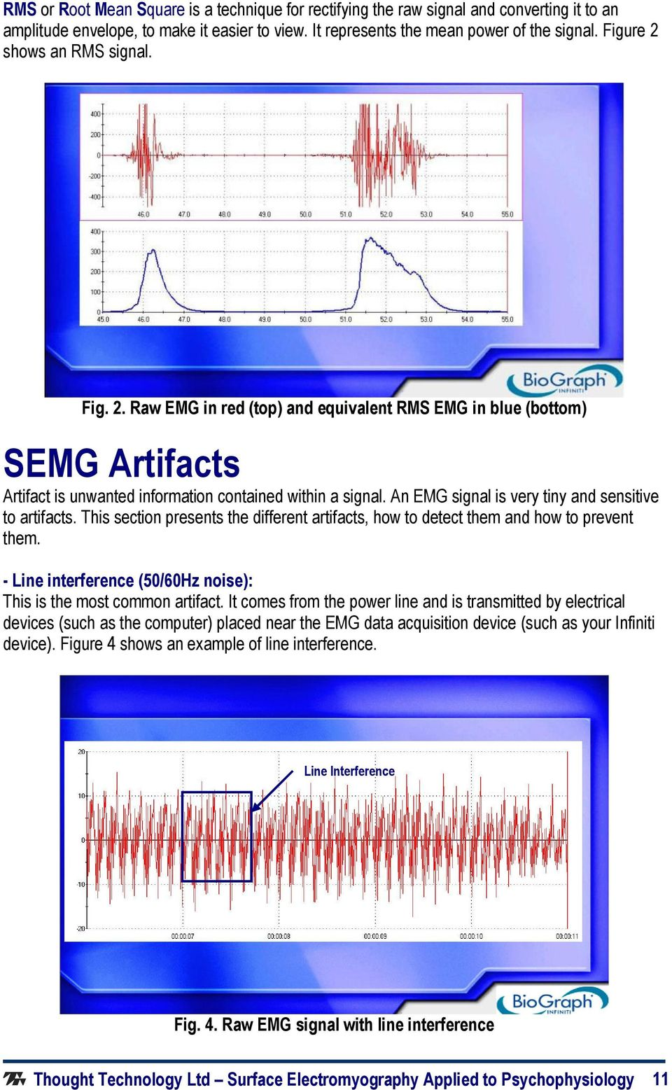 Basics Of Surface Electromyography Pdf Figure 5 Schematic Diagram The Emg Detecting An Signal Is Very Tiny And Sensitive To Artifacts This Section Presents Different