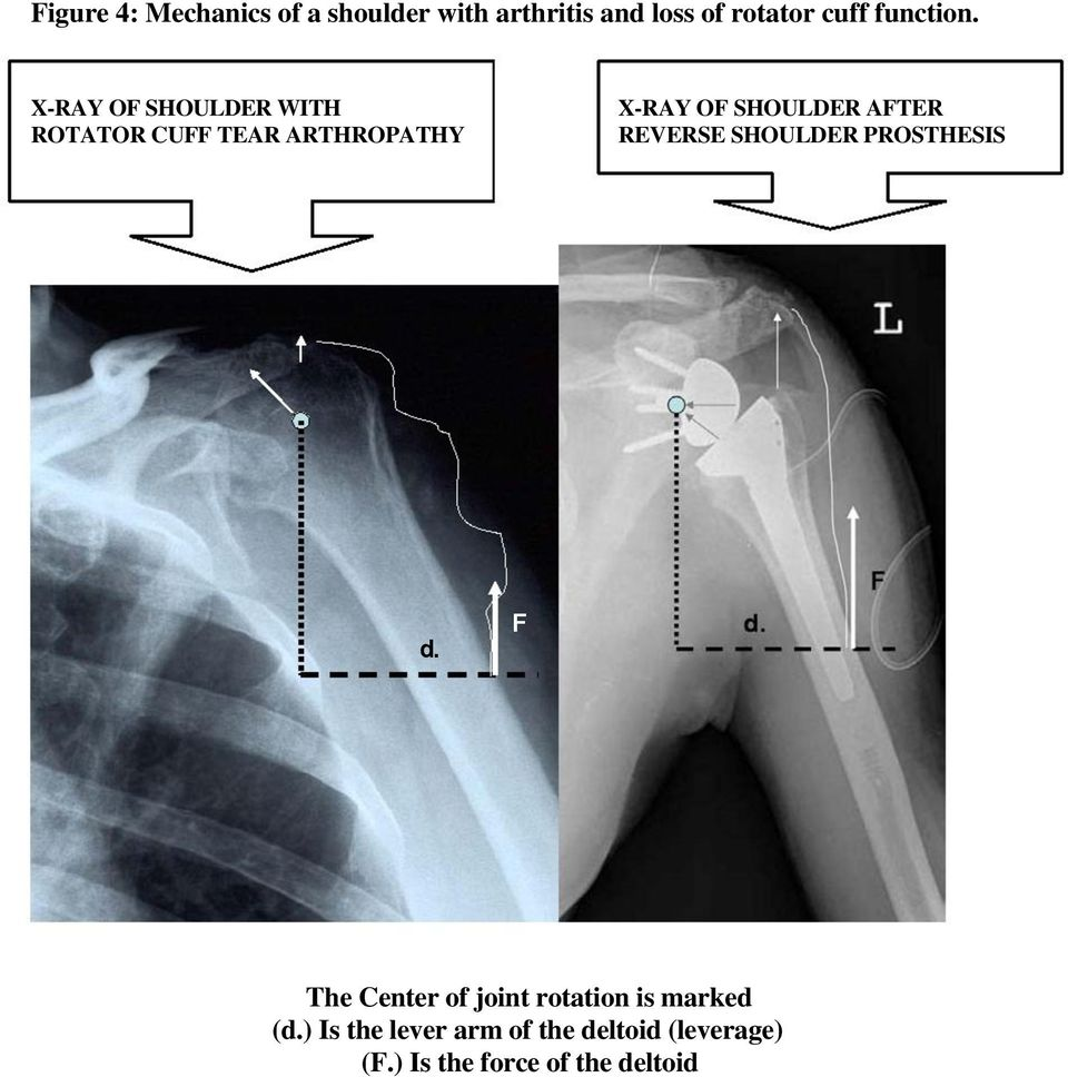 REVERSE SHOULDER PROSTHESIS d. F The Center of joint rotation is marked (d.