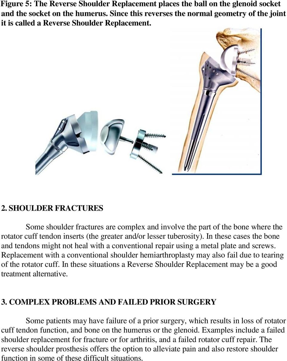 SHOULDER FRACTURES Some shoulder fractures are complex and involve the part of the bone where the rotator cuff tendon inserts (the greater and/or lesser tuberosity).