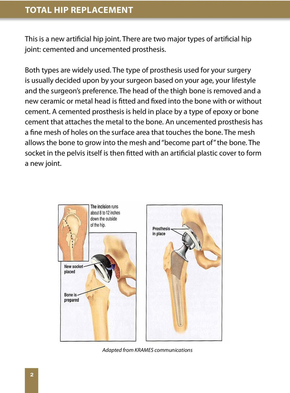 Post-operative guidelines for patients having total hip