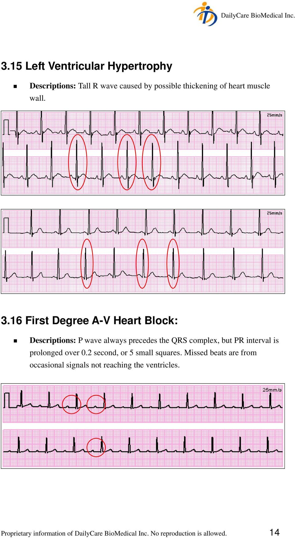 16 First Degree A-V Heart Block: Descriptions: P wave always precedes the QRS complex, but PR interval