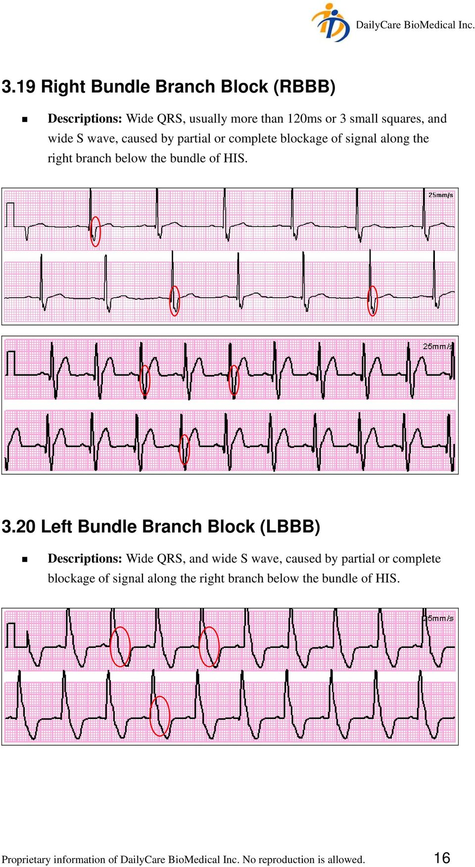 20 Left Bundle Branch Block (LBBB) Descriptions: Wide QRS, and wide S wave, caused by partial or complete blockage of