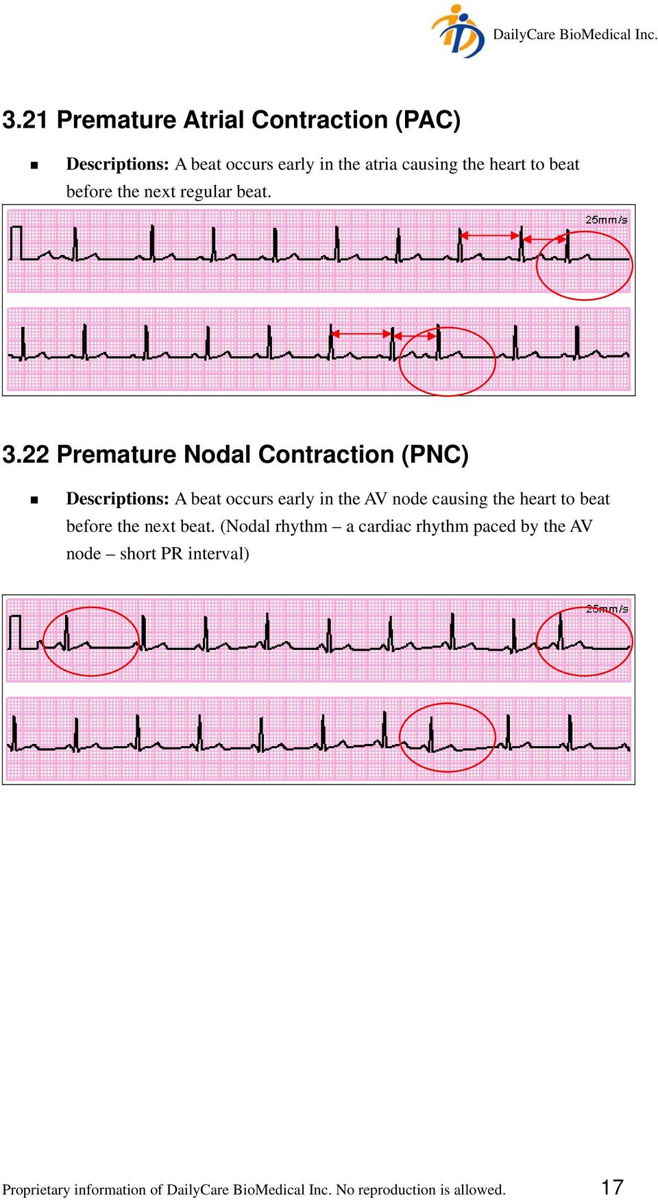 22 Premature Nodal Contraction (PNC) Descriptions: A beat occurs early in the AV node causing the heart to