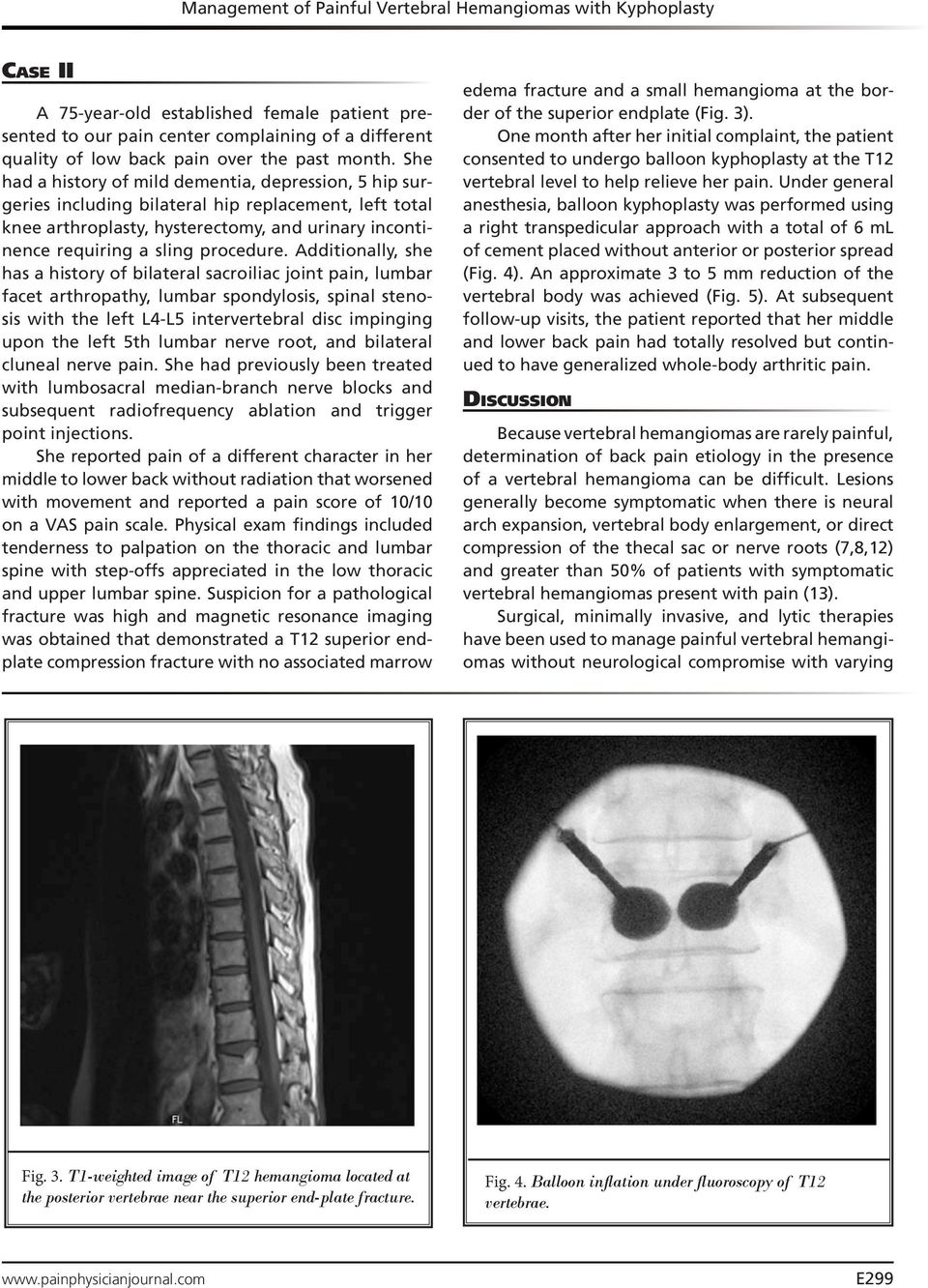 Management Of Painful Vertebral Hemangiomas With Kyphoplasty A