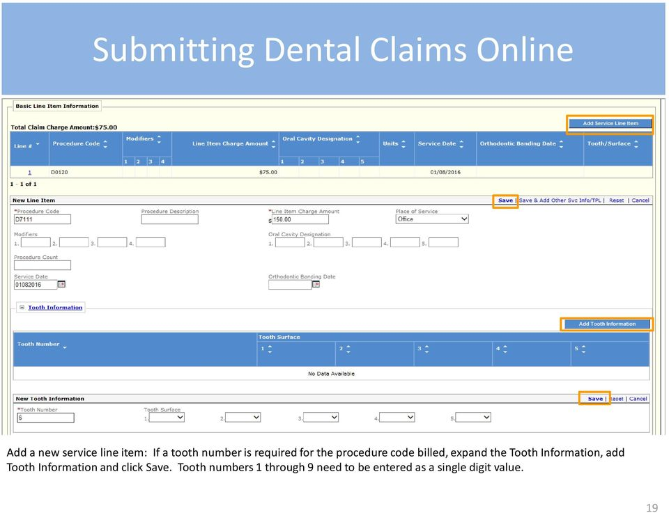 Information, add Tooth Information and click Save.