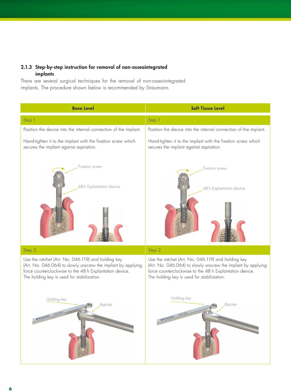 Guidance for implant removal  Straumann Dental Implant