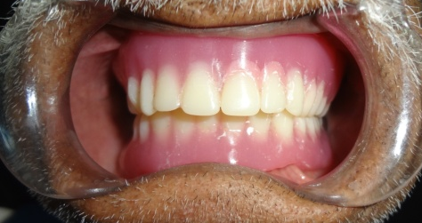 Telescopic overlay denture a preventive approach for minimizing