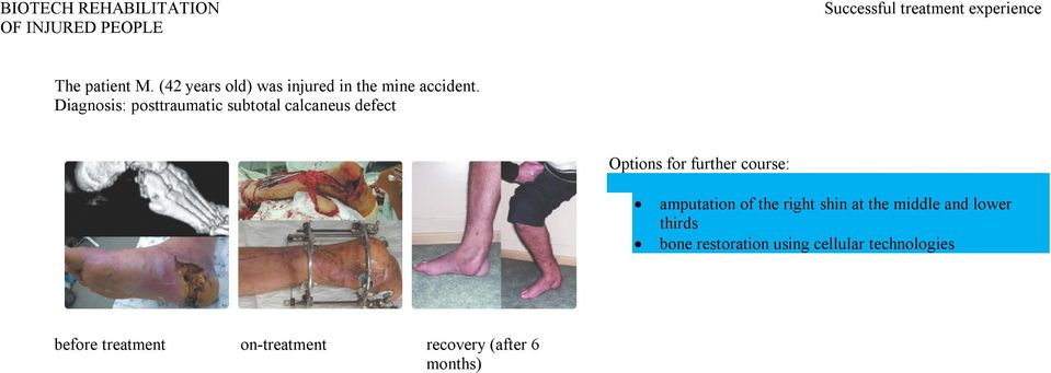 Diagnosis: posttraumatic subtotal calcaneus defect Options for further course:
