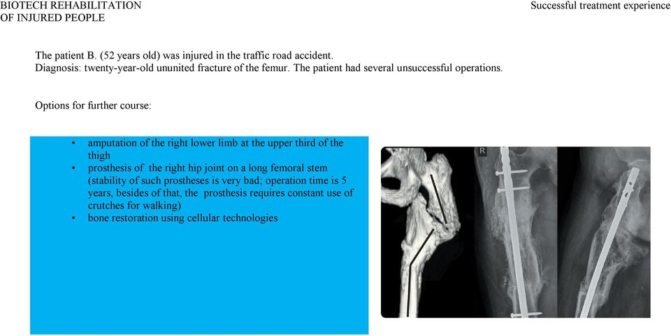 Options for further course: amputation of the right lower limb at the upper third of the thigh prosthesis of the right hip joint on a long