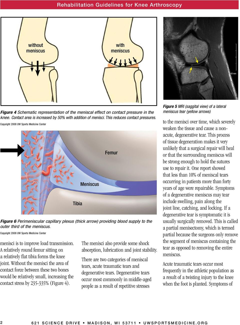 Copyright 2008 UW Sports Medicine Center menisci is to improve load transmission. A relatively round femur sitting on a relatively flat tibia forms the knee joint.