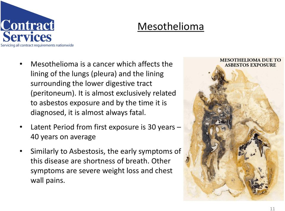 It is almost exclusively related to asbestos exposure and by the time it is diagnosed, it is almost always fatal.
