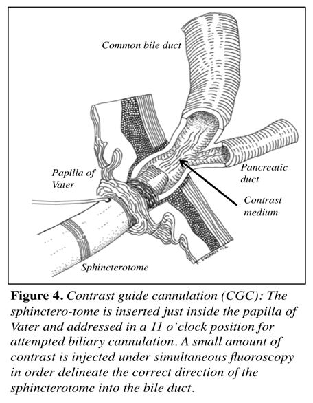 ASPECTS OF INTERVENTIONAL ENDOSCOPIC TREATMENT OF COMMON