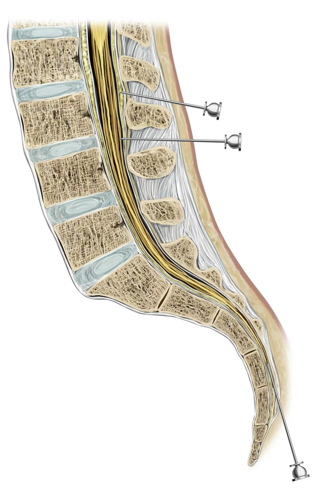 STRUCTURE OF THE PELVIC WALL - PDF