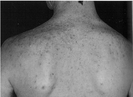 Objectives Common Cutaneous Bacterial Infections