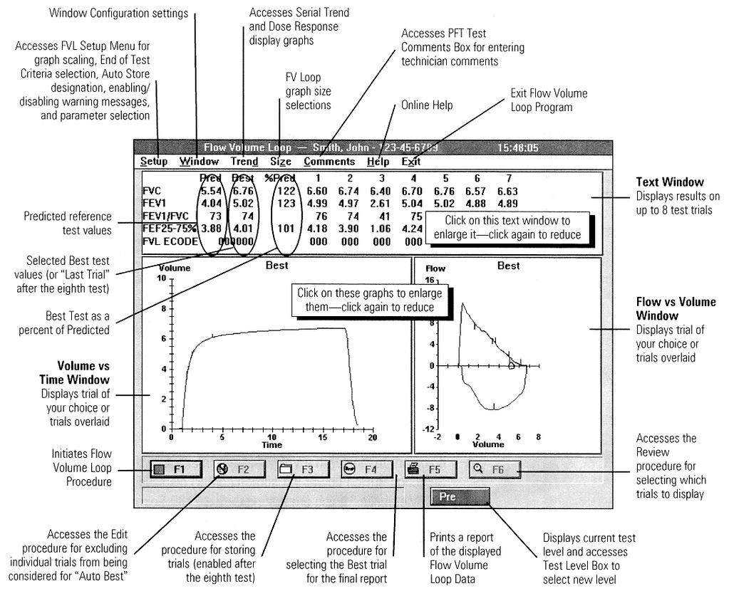 Operator S Manual C Sensormedics Corporation Printed In The United Wiring Diagrams Information Sbo Community 50 Vmax Chapter 5 Pulmonary Function Testing Flow Volume Loops For Additional On All