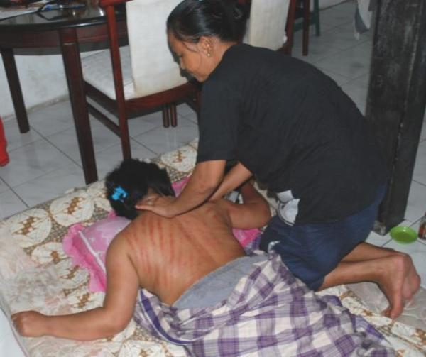 Kerok to relieve flu Dukun belong to a different category of traditional healers. There are many good dukun, but also some that are not good. Many have psychic powers, like some of the masseurs.