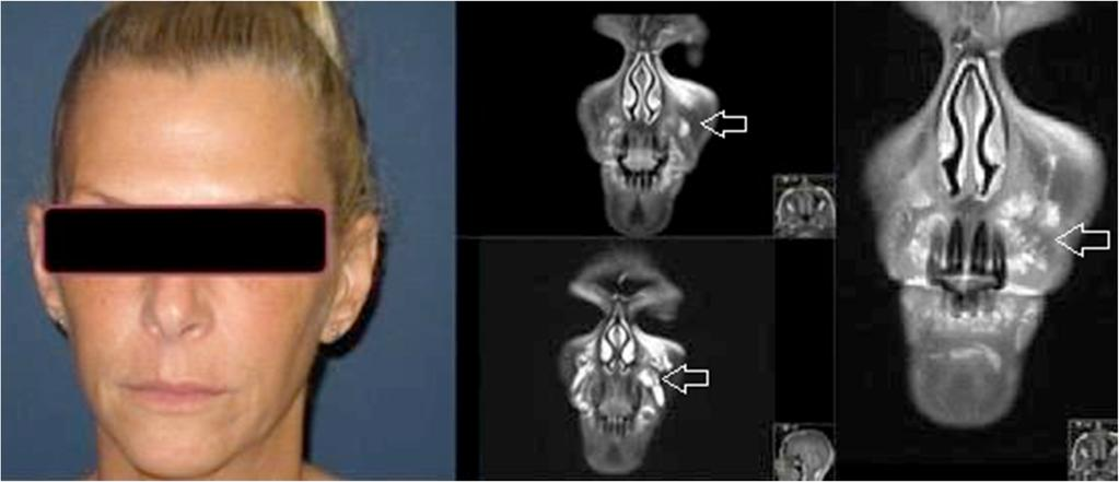MRI in detecting facial cosmetic injectable fillers - PDF
