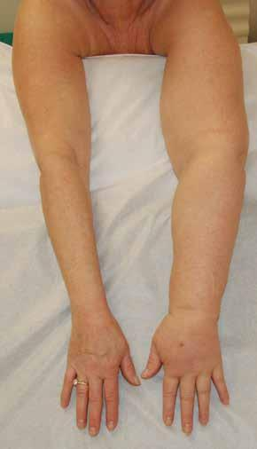 In This Issue  Surgery for Lymphedema Vol  28, No  4 October