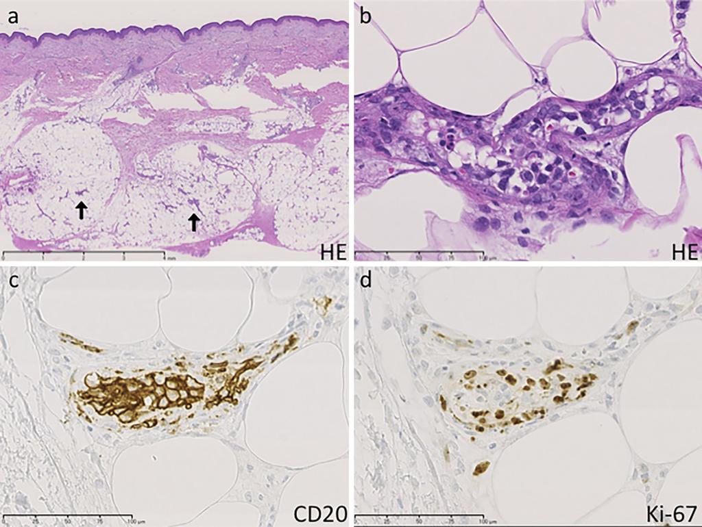 Methotrexate-associated Intravascular Large B-cell Lymphoma